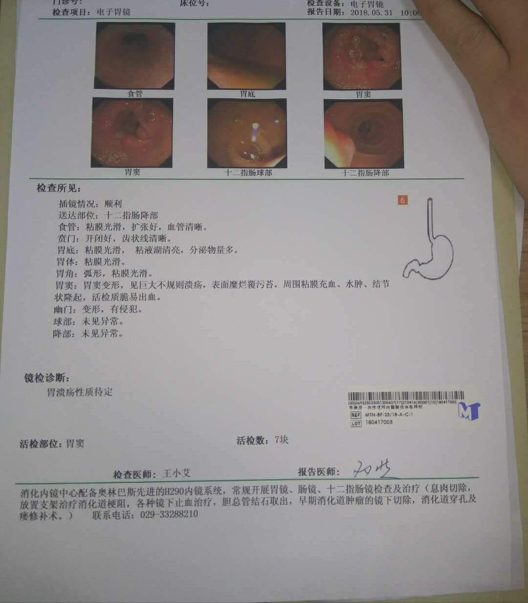 胃窦腺低分化 印戒细胞癌 打算在交大一附院手术-图1