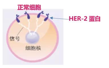 人体癌细胞图片_【科普】 什么是HER-2阳性乳腺癌?-乳腺癌康复圈-觅健
