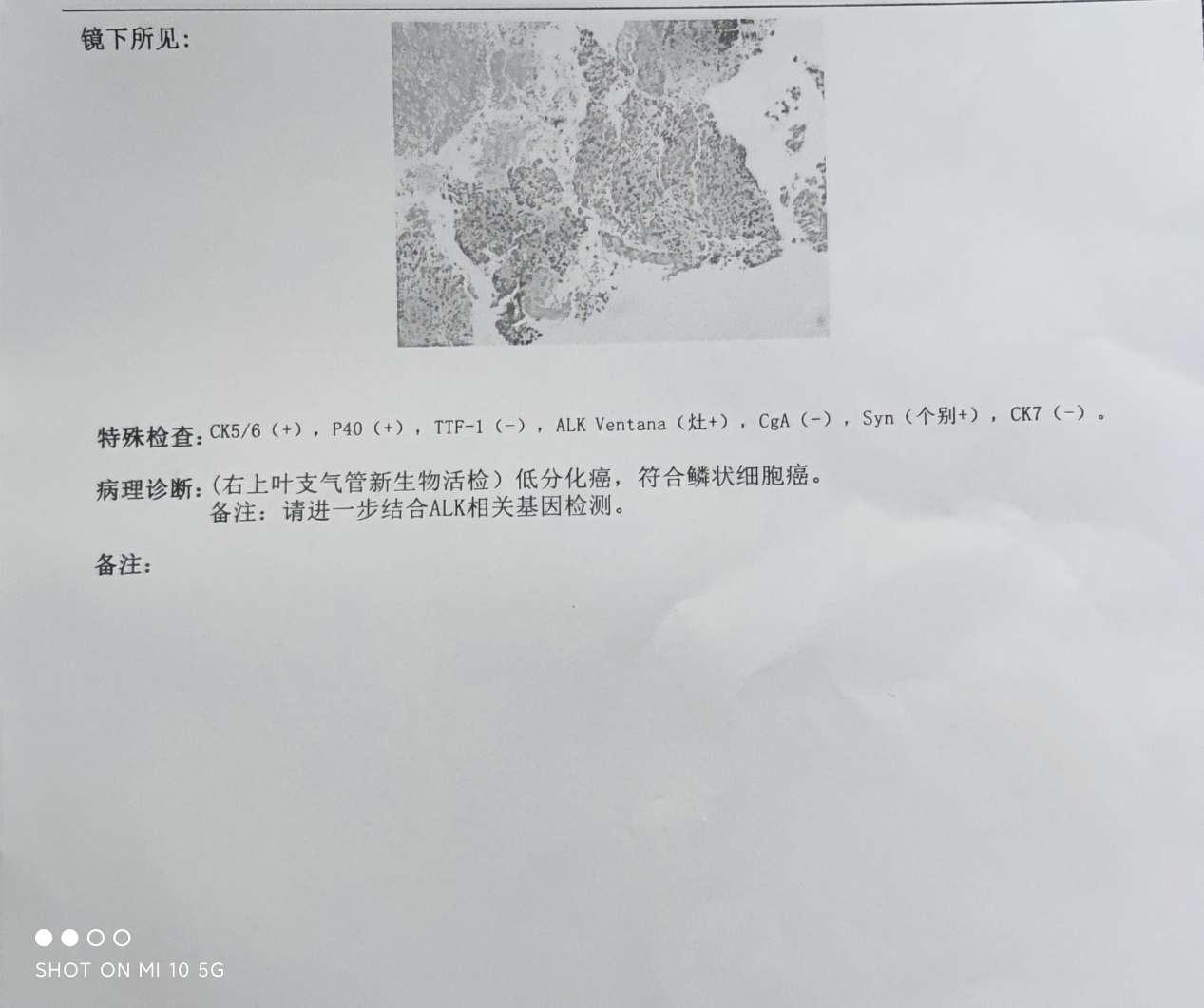 我父亲是肺鳞癌3B,免疫组化显示ALK VENTANA(灶 ),-图1