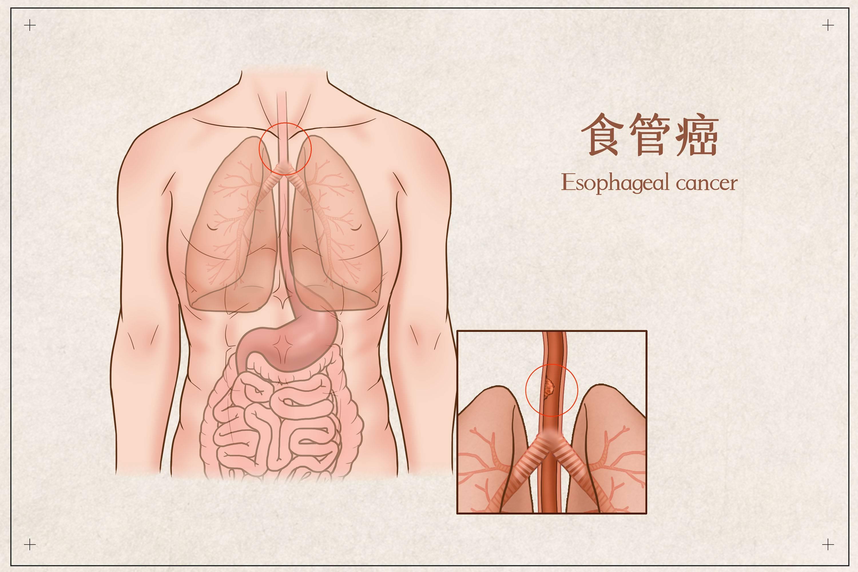 摄图网_401863169_食管癌医疗插画(企业商用).jpg