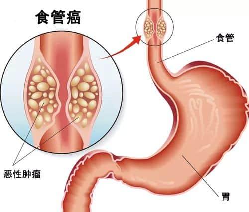 帕博利珠单抗(K药)治疗食管癌疗效是化疗3倍以上