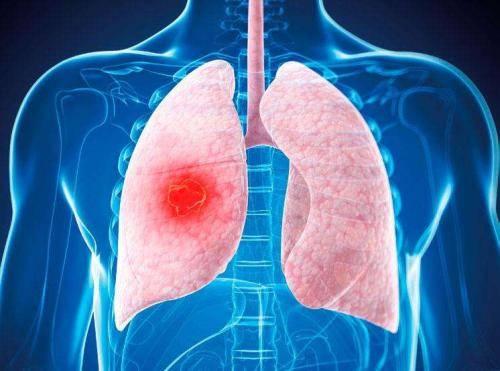 2020肺癌新药度伐利尤单抗(英飞凡I药)获批上市,疗效显著!
