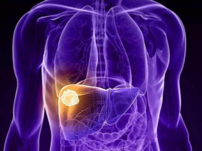 卡瑞利珠单抗(艾瑞卡)疗效对晚期肺癌的生存期创历史