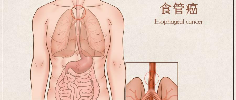 食管癌.jpg
