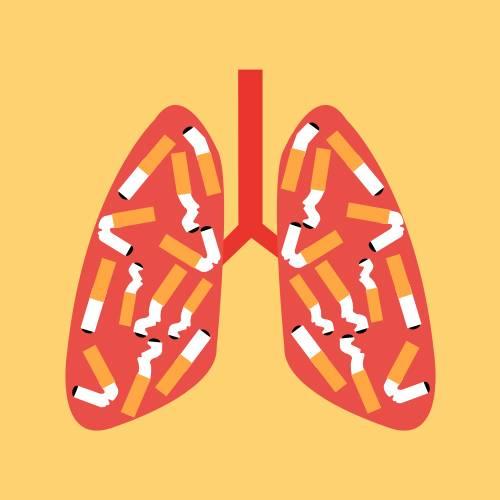 肺癌是发病率和死亡率增长最快,对人群健康和生命威胁最大的恶性肿瘤之一。近50年来许多国家都报道肺癌的发病率和死亡率均明显增高,男性肺癌发病率和死亡率均占所有恶性肿瘤的第一位,女性发病率占第二位,死亡率占第二位。肺癌的病因至今尚不完全明确,大量资料表明,长期大量吸烟与肺癌的发生有非常密切的关系。已有的研究证明:长期大量吸烟者患肺癌的概率是不吸烟者的10~20倍,开始吸烟的年龄越小,患肺癌的几率越高。此外,吸烟不仅直接影响本人的身体健康,还对周围人群的健康产生不良影响,导致被动吸烟者肺癌患病率明显增加。城市居民肺癌的发病率比农村高,这可能与城市大气污染和烟尘中含有致癌物质有关。因此应该提倡不吸烟,并加强城市环境卫生工作。